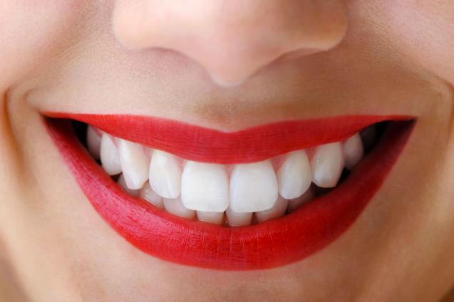 denti bianchi e perfetti